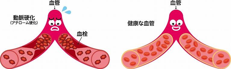 動脈硬化を引き起こす脂質異常症