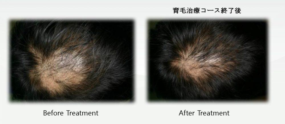 大阪の玉城クリニックでは、ヒーライトで薄毛治療を行なっています