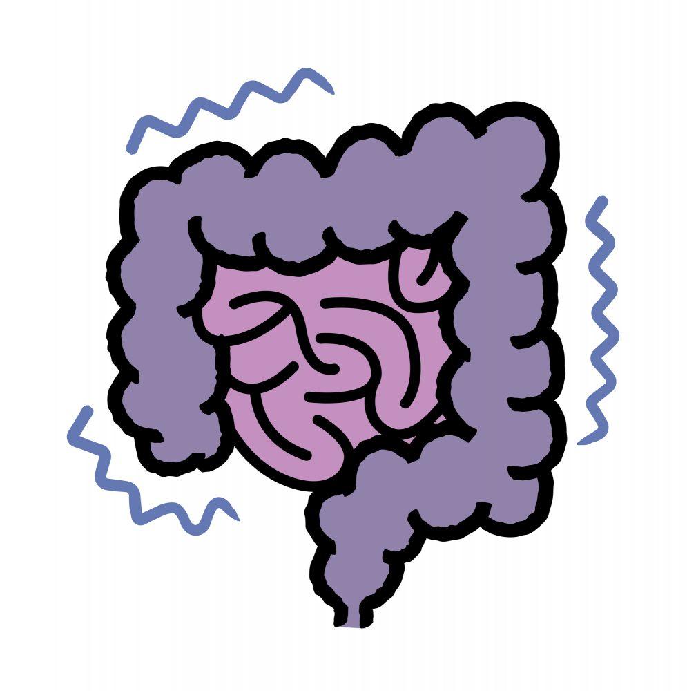 腸閉塞の原因や症状について